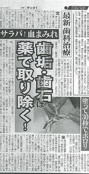 日刊ゲンダイ【歯垢・歯石は薬で取り除く!】